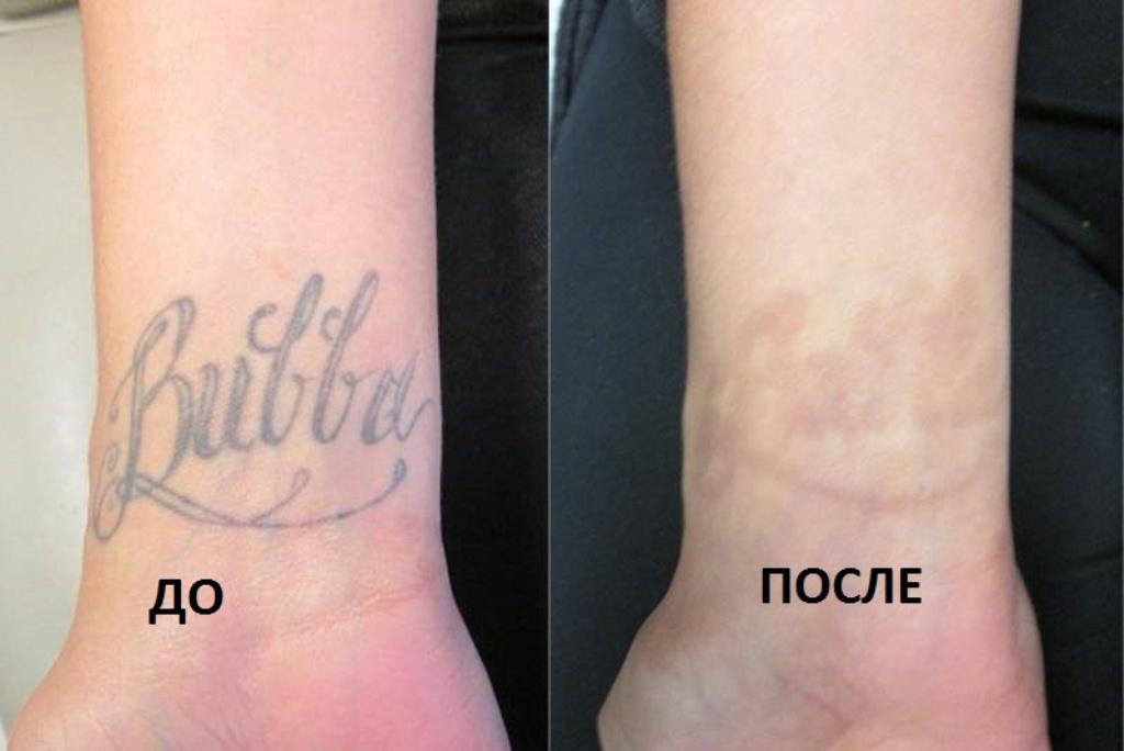 сведение татуировок