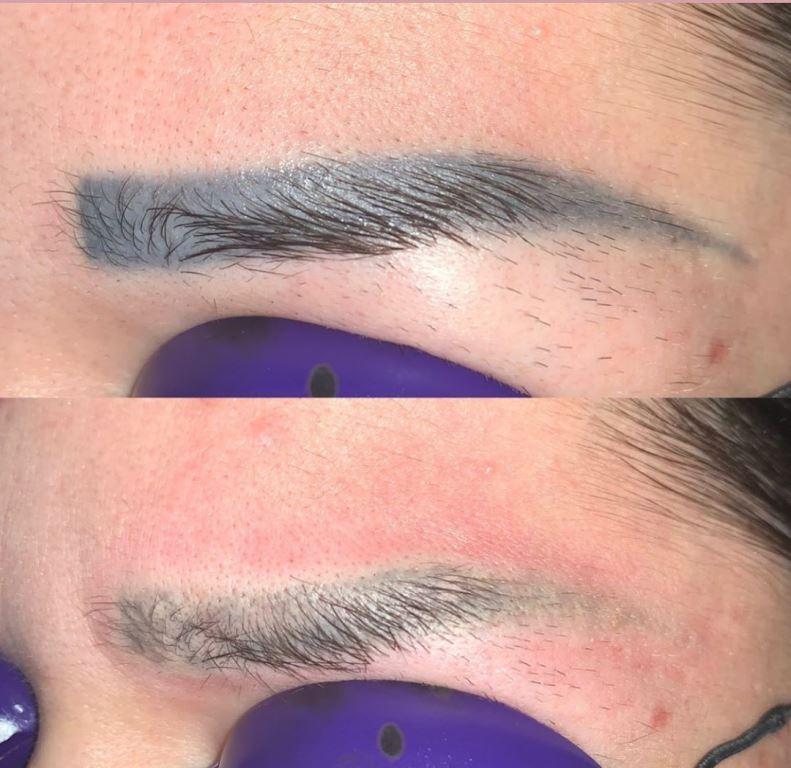 удаление перманентного макияжа лазером