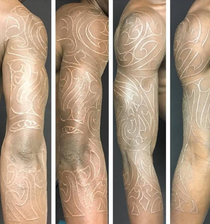 шрамирование тела как делают